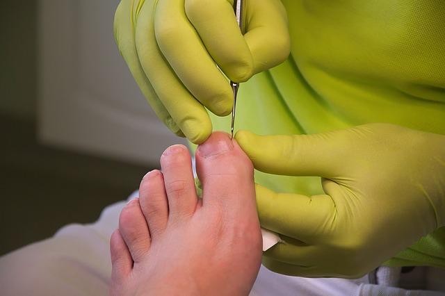 Pedikérka v zelenom tričku a zelených rukaviciach ošetruje ľudskú nohu